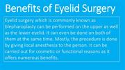 Benefits of Eyelid Surgery