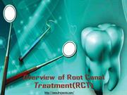 Overview of Root Canal Treatment by root canal specialist in pune
