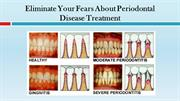 Eliminate Your Fears About Periodontal Disease Treatment