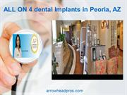 ALL ON 4 dental Implants in Peoria, AZ