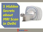MRI Scan cost in Delhi - 5 Secrets Revealed that you MUST Know!
