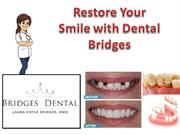 Female Dentist Brandon- Restore Your Smile with Dental Bridges |Bridg