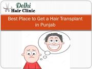 Best Hair Transplant Surgery in Punjab at Cheap Cost