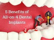 5 Benefits of All-on-4 Dental Implants