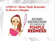 ANQI LI - Home Made Remedies To Remove Pimples