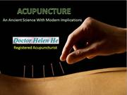 Role of Acupuncture in the Treatment of Depression