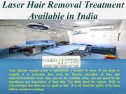 Laser Hair Removal Treatment Available in India