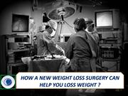 HOW A NEW WEIGHT LOSS SURGERY CAN HELP YOU LOSS WEIGHT