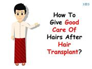 How To Give Good Care Of Hairs After Hair Transplant
