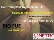 Top Hair Transplant Surgery Clinic in UAE