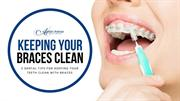 5 Dental Tips for Keeping Your Teeth Clean with Braces