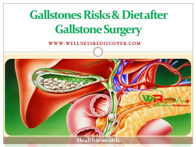 Gallstones Risks And Diet After Gallstone Surgery Authorstream