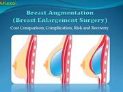 A guide to Breast Augmentation