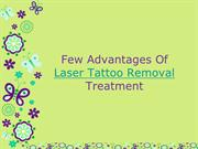 Few Advantages Of Opting Out For Laser Tattoo Removal Treatment