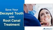Save Your Decayed Tooth with Root Canal Treatment