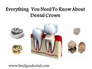 Valrico Dentist: Everything  You Need To Know About  Dental Crown