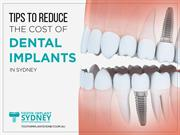 Cost of Dental Implants in Sydney - Tooth Implant Sydney