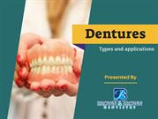 Facts on Partial and Full Dentures