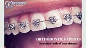 Best Orthodontist in Monument CO