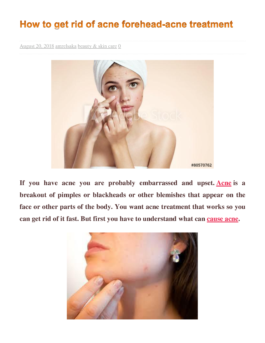 How To Get Rid Of Acne Forehead Acne Treatment Authorstream