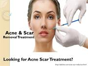 Acne & Scar Removal Treatment in Gurgaon