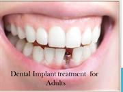 best dental implant treatment