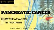 Treatment for Pancreatic Cancer in Kochi