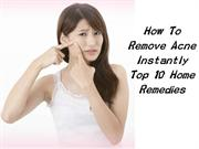 How To Remove Acne Instantly Top 10 Home Remedies