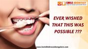 Invisalign in Bangalore | Best Orthodontist in India