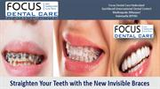 Straighten Your Teeth with the New Invisible Braces