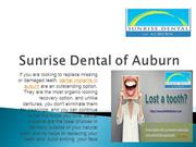 Dental Implants in Auburn |  Best Replacing Missing Tooth Solutions