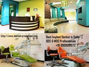 Best Implant Dentist in Delhi- BDS & MDS Professionals