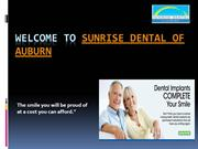 All on 4 Dental implants Auburn | Sunrise Dental of Auburn,WA