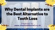 Why Dental Implants are the Best Alternative to Tooth Loss