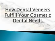 How Dental Veneers Fulfill Your Cosmetic Dental Needs