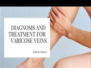 Diagnosis and treatment for varicose vein
