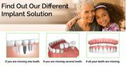 Different Dental Implant Solutions in London and Budapest by Hungary D