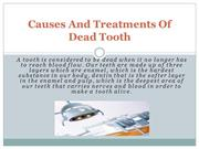 Causes And Treatments Of Dead Tooth   Bridges Dental