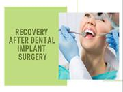 Recovery After Dental Implant Surgery