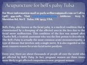 Acupuncture for bell's palsy Tulsa