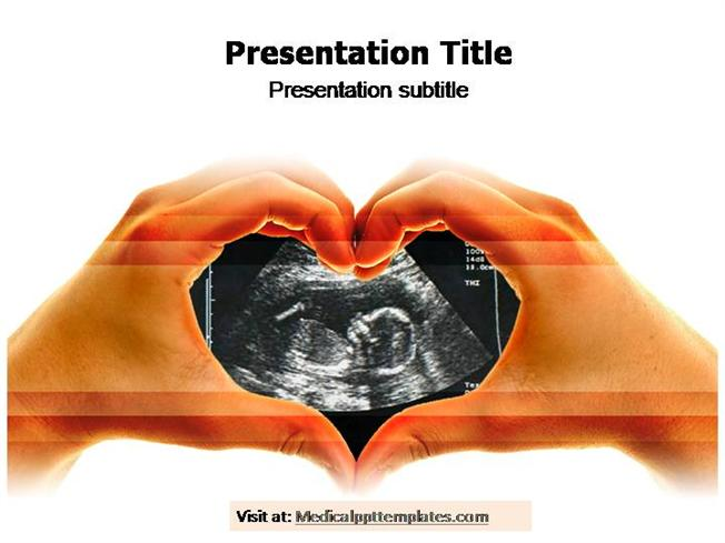 Ultrasound powerpoint template authorstream toneelgroepblik