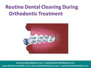 Routine Dental Cleaning During Orthodontic Treatment