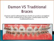 Reasons Why Damon Braces are Differing to The Traditional Braces