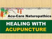Things To Know Before You Go For Acupuncture Therapy