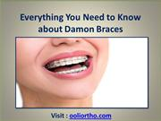 Everything You Need to Know about Damon Braces