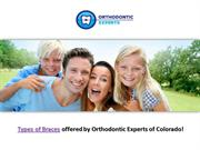Types of Braces | Orthodontic Experts of Colorado