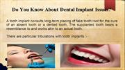 Do You Know About Dental Implant Issues