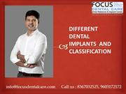 Different Dental Implants and Classification by Focus Dental Care