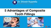 5 Benefits of Composite Tooth Fillings