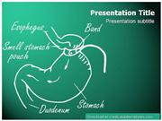 Gastric Band Powerpoint Template